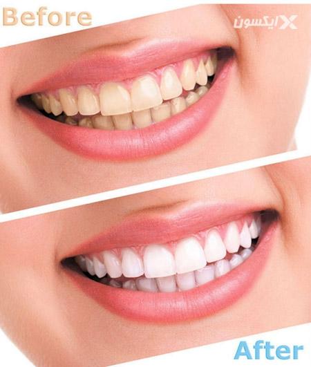 دستگاه پولیش دندان لوما 15